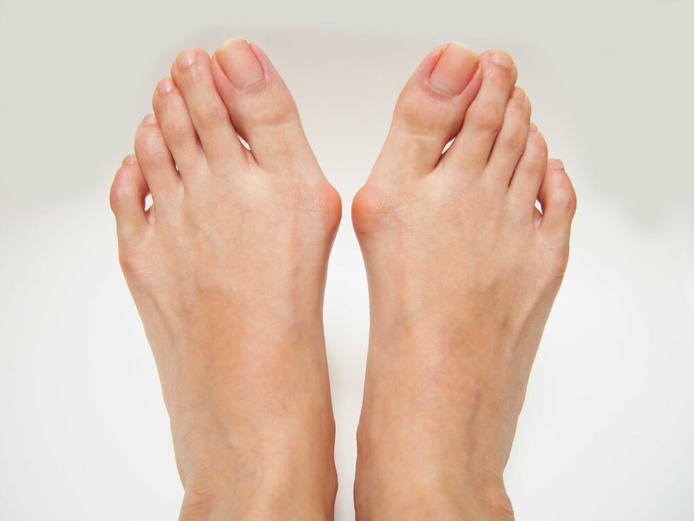Bunions showing the concept of Services