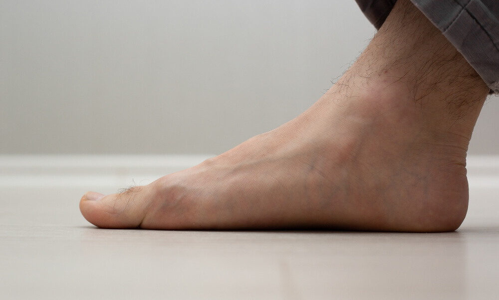 Flat Feet showing the concept of Services