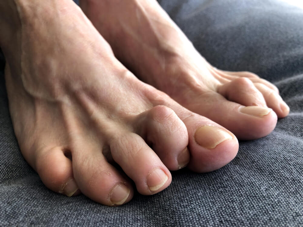 Hammer Toe showing the concept of Services
