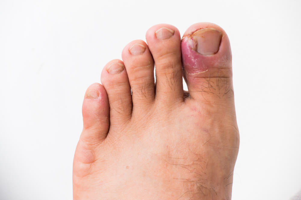 Ingrown Toenails showing the concept of Services