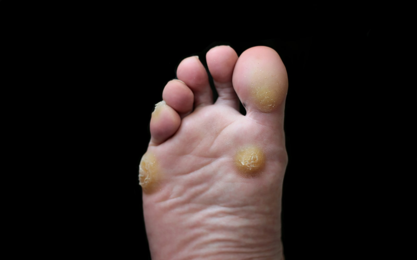 A foot with prominent corns